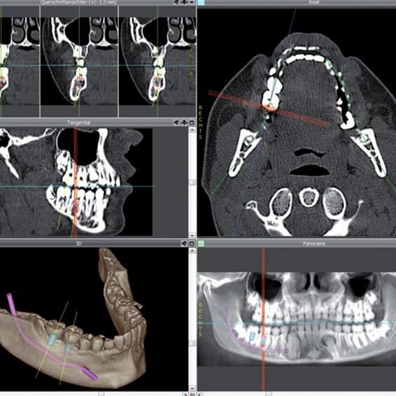 Digitale Volumentomographie - Schichtbilder der dentalen Anatomie
